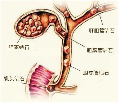 五个有效偏方治疗胆结石