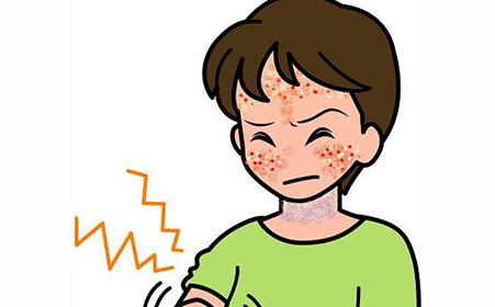 四个中药偏方治疗神经性皮炎有奇效