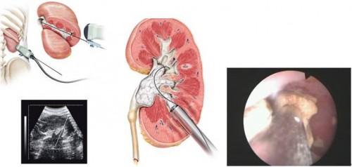 适用于肾结石患者的五个食疗偏方