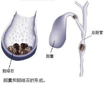 四个中药偏方治疗治慢性胆囊炎