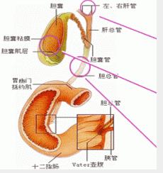 四个食疗偏方治疗胆结石